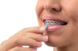 woman with braces cleans broken bracket