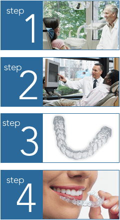 The steps taken to get Invisalign
